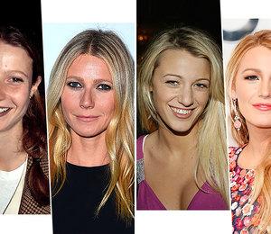 Было или нет: 15 знаменитостей, которые переделали нос